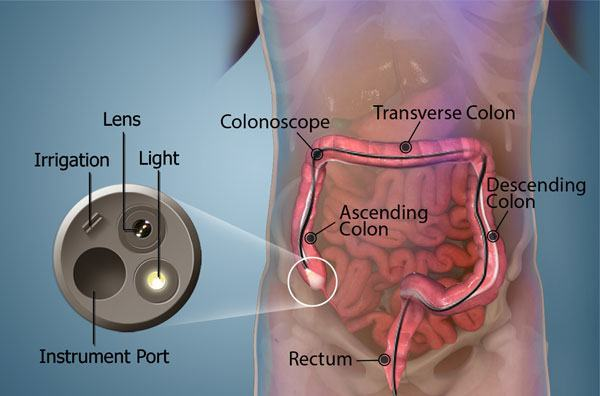 Rectal Bleeding Diagnosis Anoscopylondon Colonoscopy